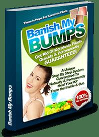 banish my bumps book