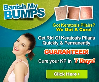 banish my bumps review
