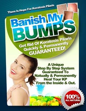 keratosis pilaris treatment lotion